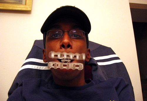 Myself, sitting in my dining room with a hair clip thing in my mouth.