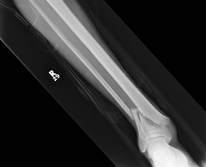 An x-ray of my broken leg